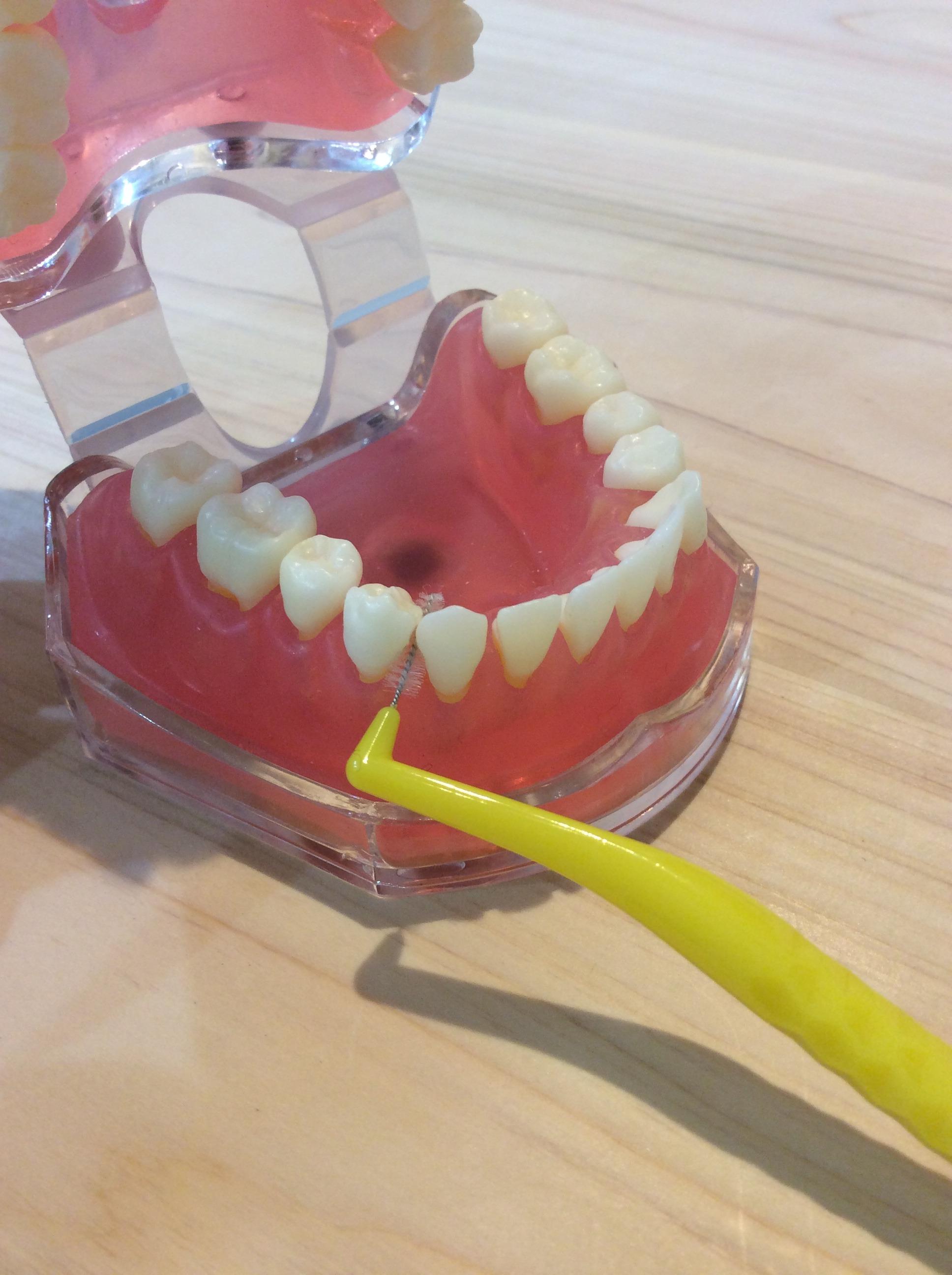歯間ブラシデモ