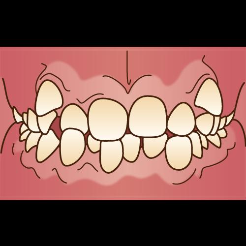 叢生(そうせい)・乱ぐい歯
