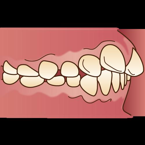 上顎前突(じょうがくぜんとつ)・出っ歯