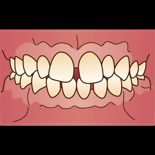 空隙歯列(くうげきしれつ)・すきっ歯